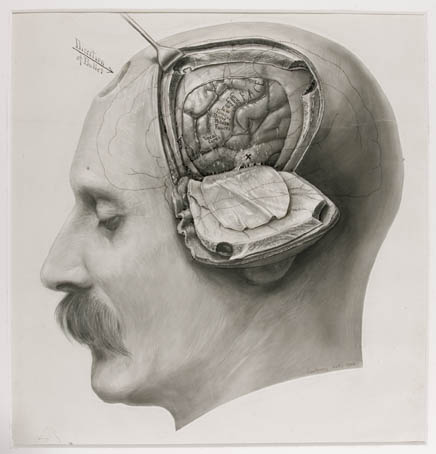 Brain-man-34